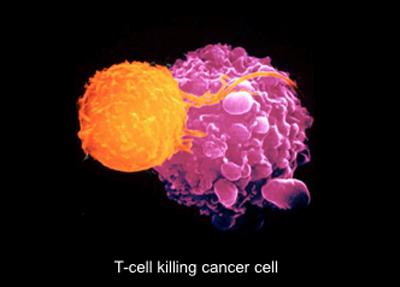 T-Zelle killt Tumorzelle