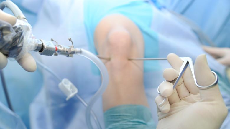 Arthroskopische Knieoperation