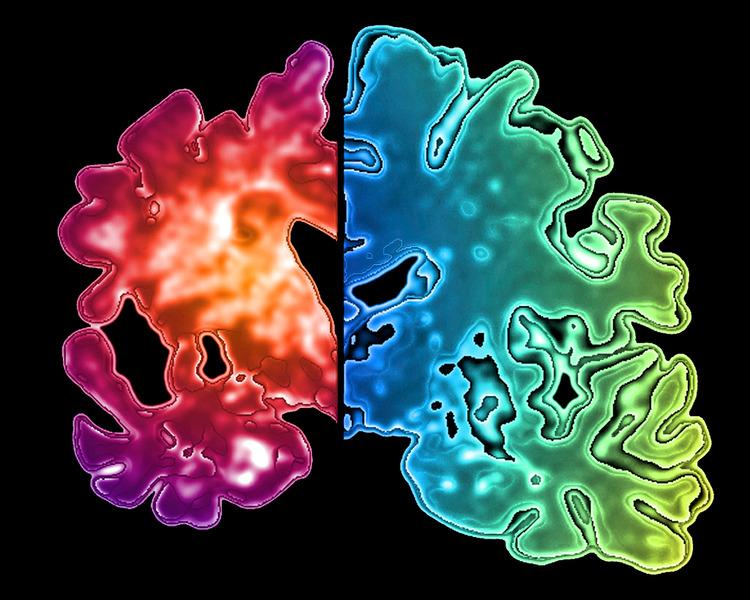 Schnitt durch ein gesundes Gehirn(rechts) und dasjenige eines Alzheimer-Pateinten (links) Pasieka / SPL / Agentur Focus