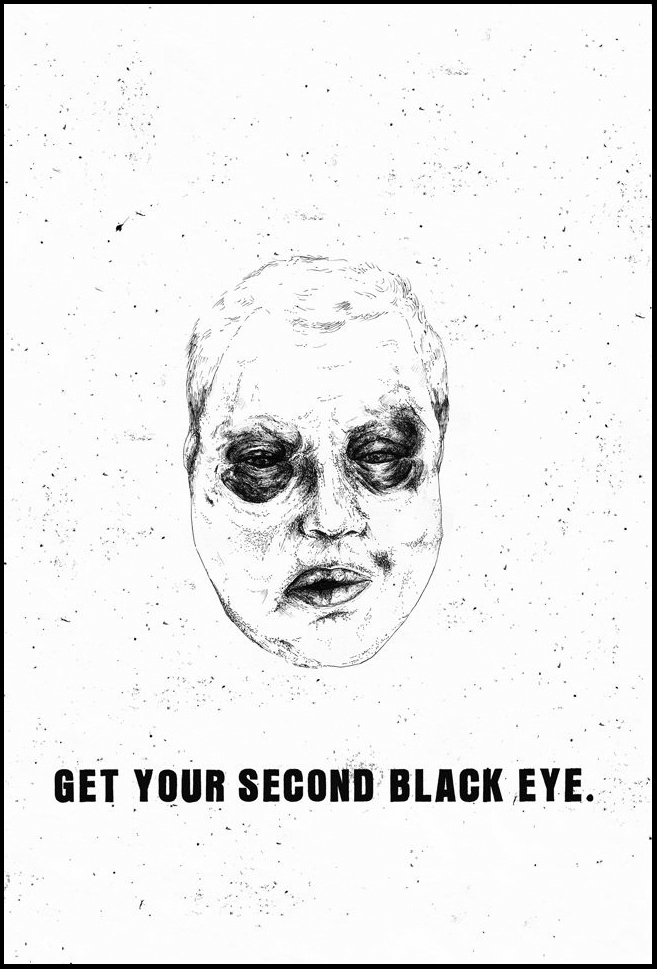 GET YOUR SECOND BLACK EYE Postcard