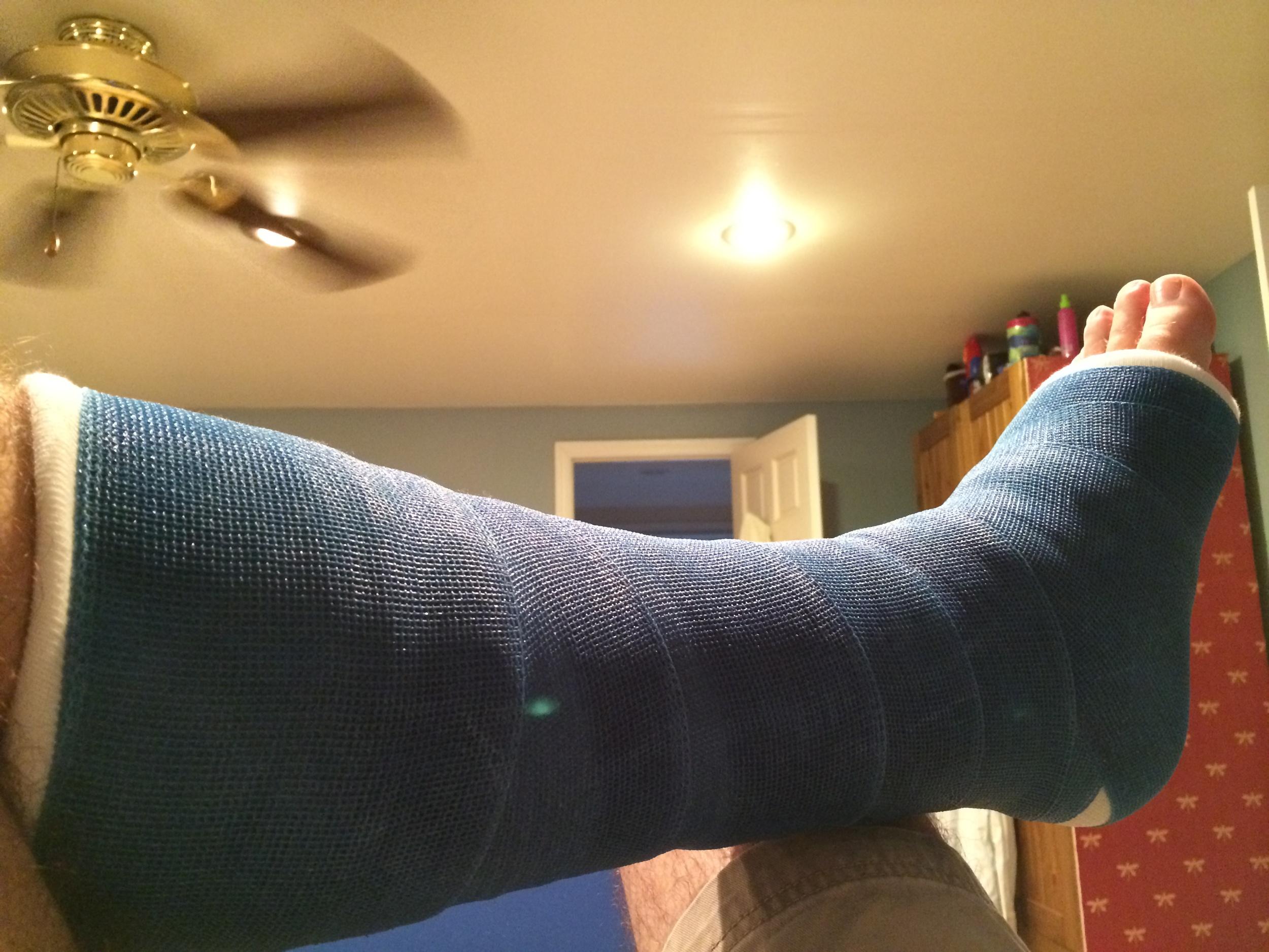 Like my blue cast?
