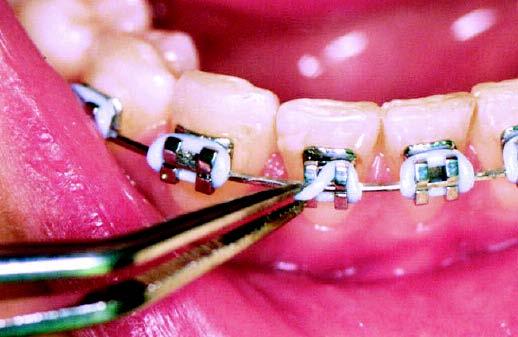 braces problems ligature piece falls off
