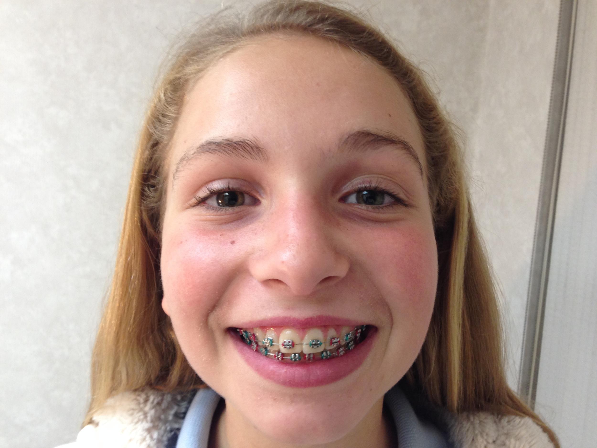 xmas colored braces.JPG