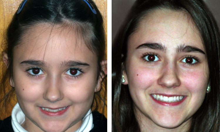 before and after braces forest hills ny orthodontist patient