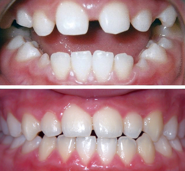 forest hills braces before and after
