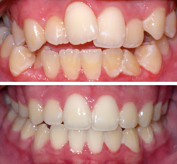 richmond hill invisalign