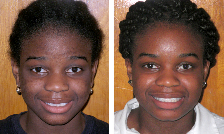 queens orthodontist before and after