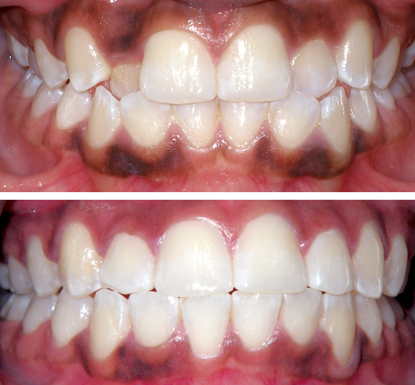 queens ny invisalign before and after