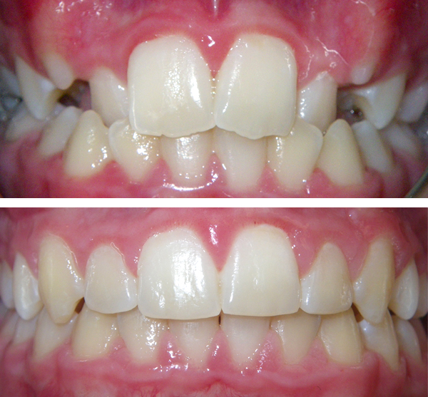 forest hills invisalign before and after