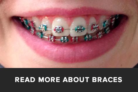 orthodontic braces, rockville centre