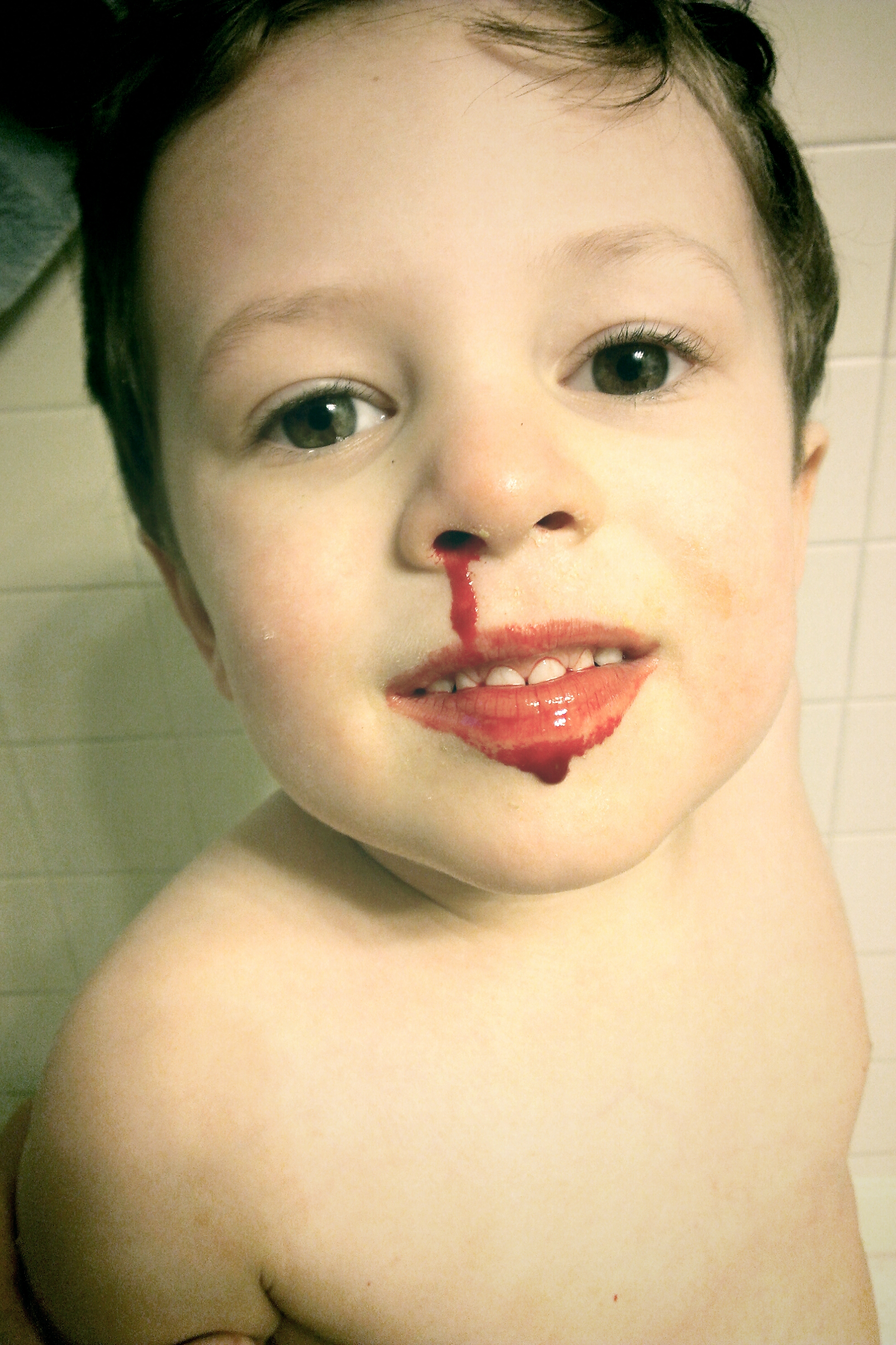 Child with a nosebleed (courtesy Ragesoss)