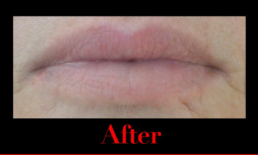 After using fullips lip enhancement. fuller lips.