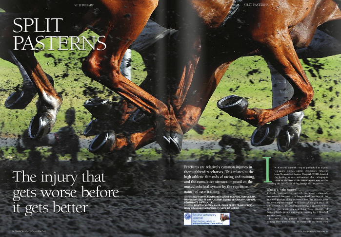 """SPLIT PASTER  The injury that gets worse before it gets better  Fractures are relatively common injuries in thoroughbred racehorses. This relates to the high athletic demands of racing and training, and the cumulative stresses imposed on the musculoskeletal system by the repetitive nature of race training.  Fractures are relatively common injuries in  In a recent scientific report published in Equine Veterinary Journal, equine orthopaedic surgeons from Newmarket Equine Hospital (NEH) detailed the healing process and warned that radiographs taken at the time of the initial injury may not be  revealing the full extent of the damage that is present.  What is a """"split pastern?"""" A """"split pastern"""" is one of the most commonly encountered fractures – a longitudinal fracture of the proximal phalanx (long pastern bone) that extends from the metacarpophalangeal or metatarsophalangeal (fetlock) joint towards the proximal interphalangeal (pastern) joint. This is the most common long bone fracture of thoroughbreds in race training, accounting for 15% of all fracture cases.  Fractures of the pastern occur more commonly in training than when racing. Two-year-olds are most often affected, and forelimbs are injured with much greater frequency than hindlimbs.  The term 'fracture configuration' refers to the path of the fracture through the bone, and there is remarkable consistency in the location and direction in pastern fractures. At the fetlock joint, the bottom of the cannon bone has a ridge that runs from front to back along the centre line of the bone. Opposing this in the top surface of the long pastern bone is a groove – the sagittal groove – that accommodates this ridge. Most commonly, fractures start in the sagittal groove and then course distally (towards the hoof). Fractures can be complete – extending to emerge either at the cortex of the bone or into the pastern joint, or incomplete – with the fracture ending somewhere in the central portion of the bone. Incomplete fractu"""