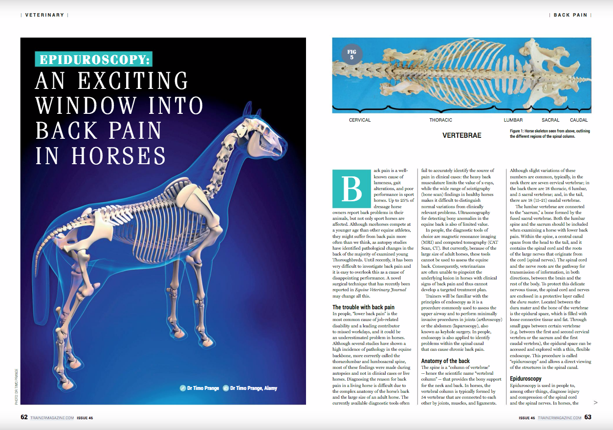 """Epiduroscopy: an exciting window into back pain in horses      Timo Prange      Back pain is a well-known cause of lameness, gait alterations, and poor performance in sport horses. Up to 25% of dressage horse owners report back problems in their animals, but not only sport horses are affected. Although racehorses compete at a younger age than other equine athletes, they might suffer from back pain more often than we think, as autopsy studies have identified pathological changes in the back of the majority of examined young Thoroughbreds. Until recently, it has been very difficult to investigate back pain and it is easy to overlook this as a cause of disappointing performance. A novel surgical technique that has recently been reported in Equine Veterinary Journal may change all this.      << EVJ logo near here>>      The trouble with back pain    In people, """"lower back pain"""" is the most common cause of job-related disability and a leading contributor to missed workdays, and it could be an underestimated problem in horses. Although several studies have shown a high incidence of pathology in the equine backbone, more correctly called the thoracolumbar and lumbosacral spine, most of these findings were made during autopsies and not in clinical cases or live horses. Diagnosing the reason for back pain in a living horse is difficult due to the complex anatomy of the horse's back and the large size of an adult horse. The currently available diagnostic tools often fail to accurately identify the source of pain in clinical cases: the heavy back musculature limits the value of x-rays, while the wide range of scintigraphy (bone scan) findings in healthy horses makes it difficult to distinguish normal variations from clinically relevant problems. Ultrasonography for detecting bony anomalies in the equine back is also of limited value.      In people, the diagnostic tools of choice are magnetic resonance imaging (MRI) and computed tomography (CAT Scan, CT). But currently, becaus"""