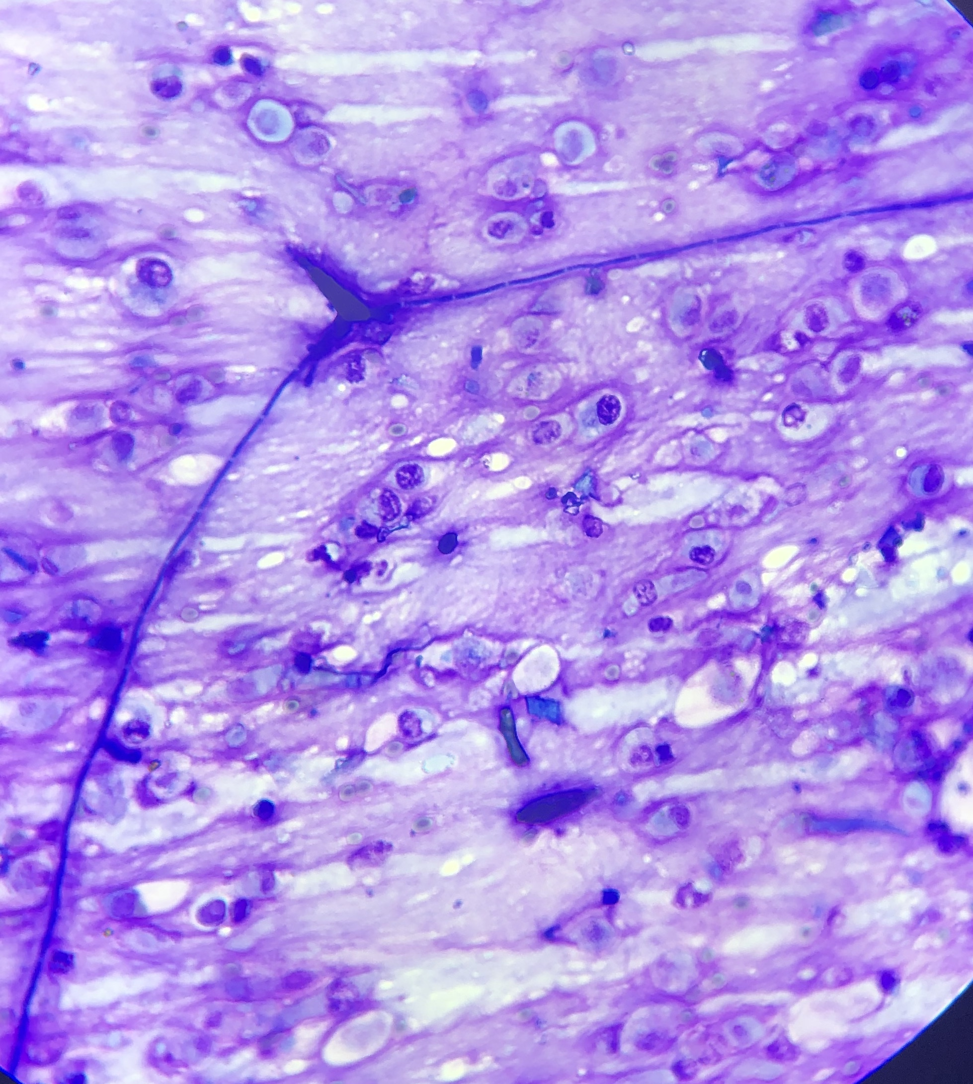 Microscope picture of a germinating fungal spore in a respiratory sample - an indication of inhalation of fungal spores in the airways and subsequent infection from the mould.