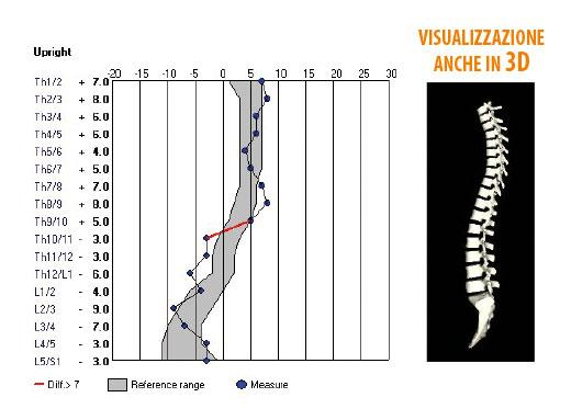 Gli angoli segmentali vengono registrati ed evidenziati in grafici funzionali ed immediati. È possibile paragonare misure in differenti posture mediante semplici confronti incrociati.