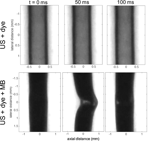 Fig. 2. Feasibility of Acoustic Particle Palpation. A wall-less vessel phantom (1.2% gelatin) contained a dark dye with either (top row) water only or (bottom row) microbubbles (MBs). The images are zoomed into the focal volume (first column) before, (middle column) during, and (last column) after ultrasound (US) exposure (centre frequency: 5MHz, peak-negative pressure: 400kPa, pulse on time: 50 ms). US propagated left to right and produced (top row) no displacement with US alone, and (e) a large displacement with MBs. This is the first demonstration that acoustic particles can be used to palpate and measure tissue elasticity. [1]