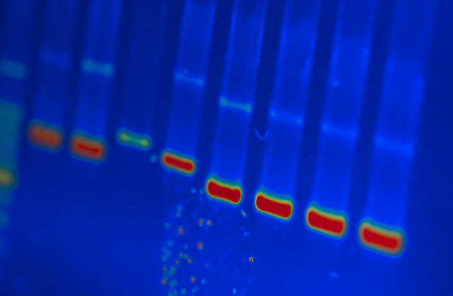 Photograph by University of Michigan DNA Lab