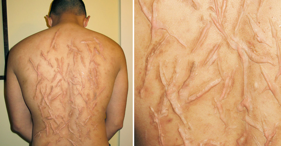 maria-lee-special-fx-whip-scars.jpg