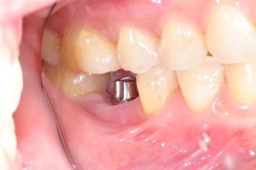 This is a nice new implant ready for a brand new crown to be placed on top! Beautiful!!
