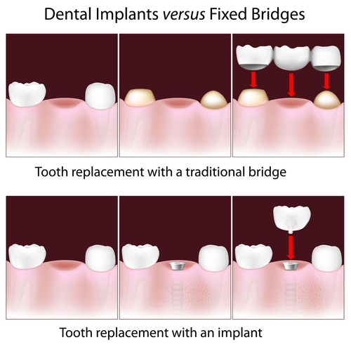 This is a visual example of the two most common ways to replace a single missing tooth.