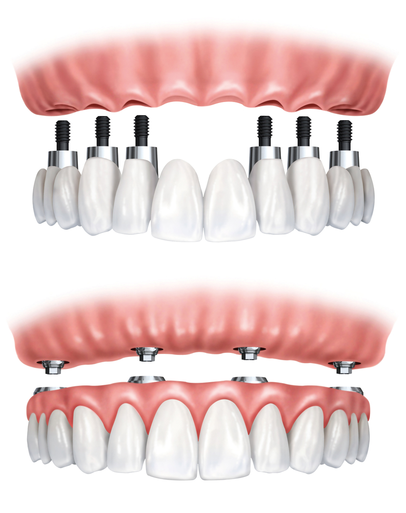"""The top picture shows an implant based fixed bridge used to restore all the teeth in an arch. This may be used on either top or bottom, and is a non-removable appliance. The bottom picture shows a dentures that is being retained by implants. This is a unit that is removable but once """"snapped"""" into place is very stable unlike plain dentures. This is called an """"overdenture""""."""