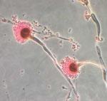 meningitis-aspergillus-fumigatus.jpg