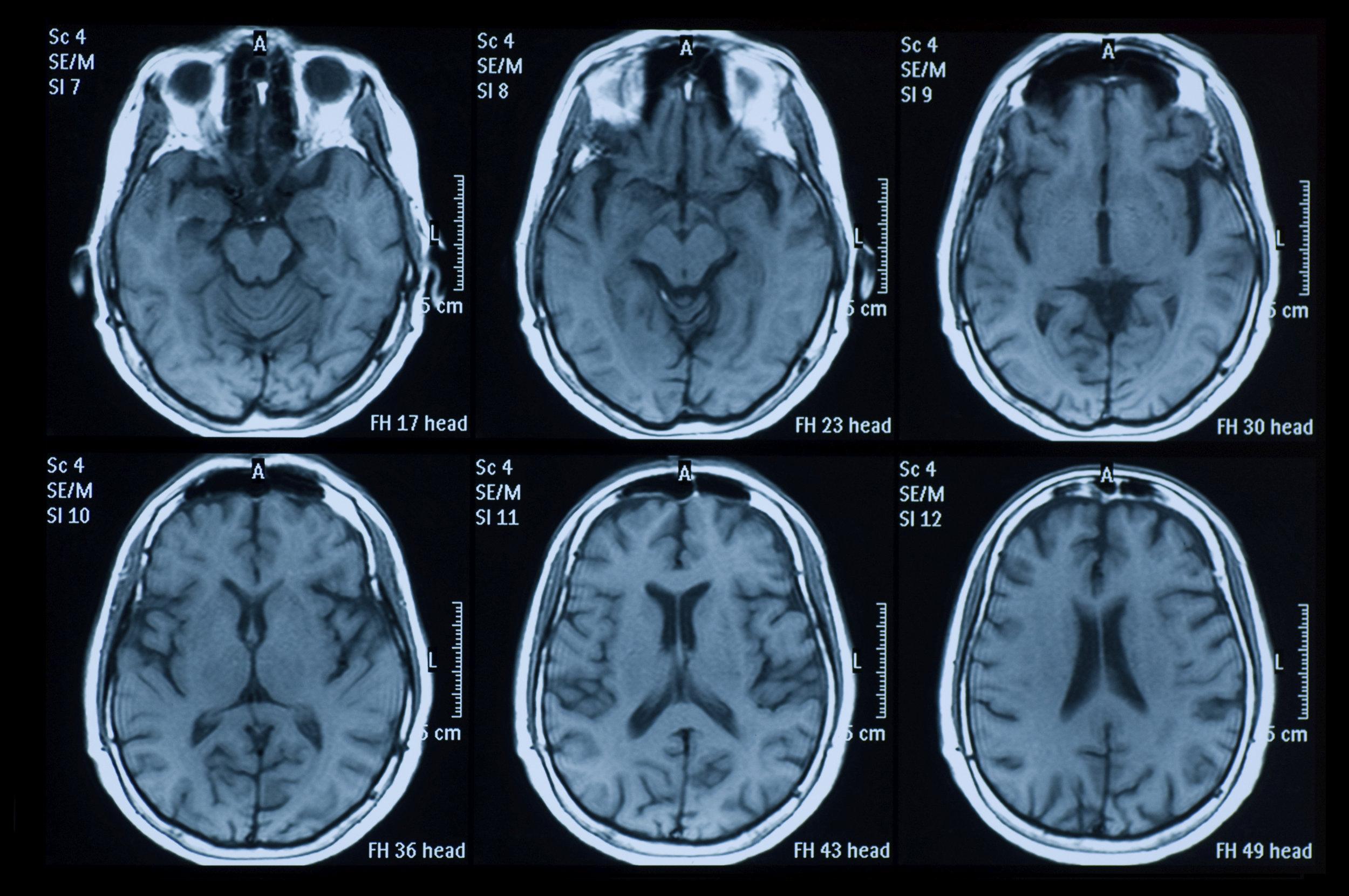 mri-brain-scan.jpg