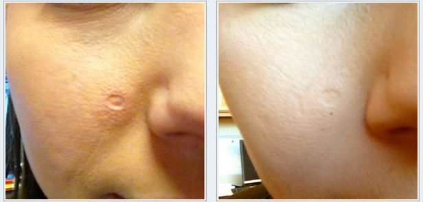 After three weeks. One localized area treatment using a 2.0mm needle.