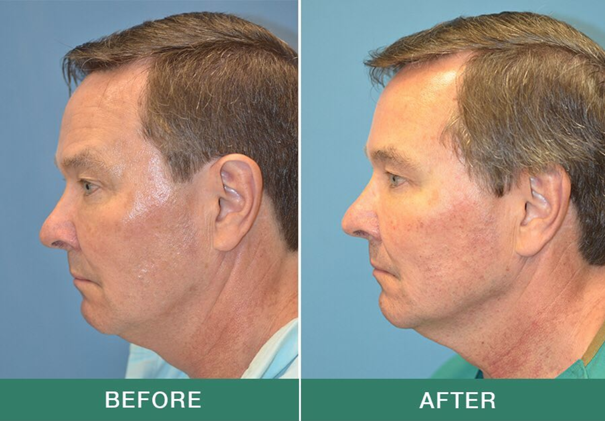 """The Profound"" Non-Surgical Face Lift can define the jawline and get rid of a double chin in one single treatment! This is just 2.5 months after Profound and look at that jawline improvement!"