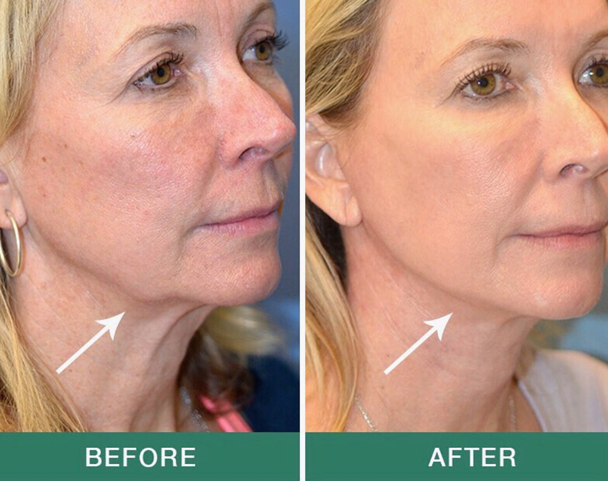 Neck Lift, also known as a lower facelift, it tightens and gives definition to the neck and straightens the jawline.