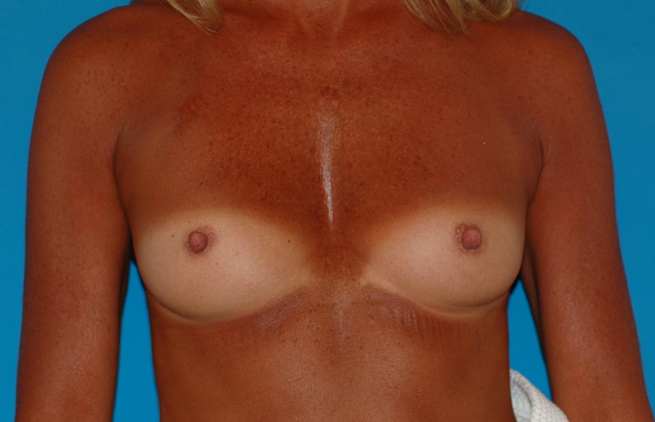 breast-before_3016.JPG