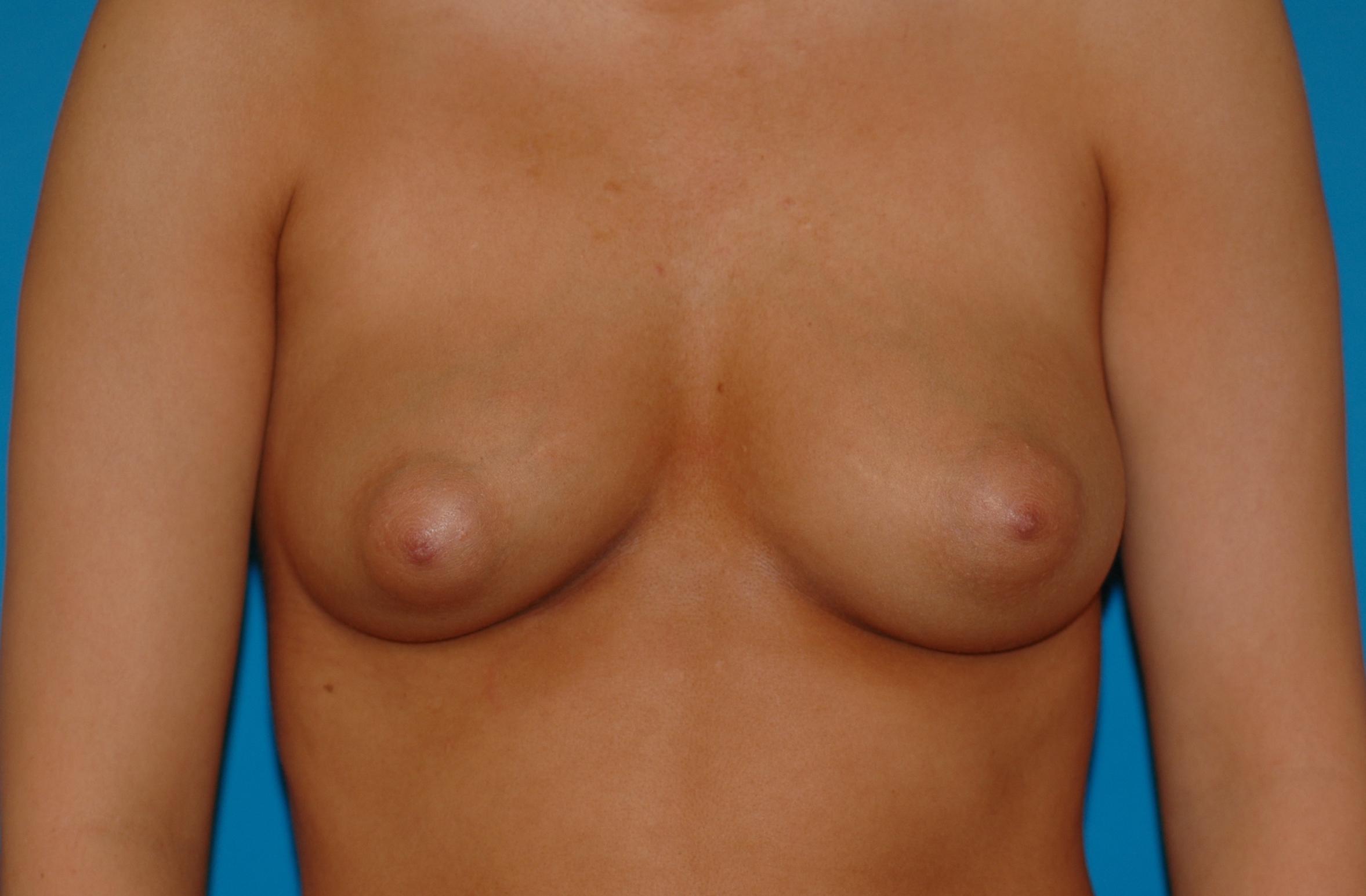 breastaug-before_2162.JPG