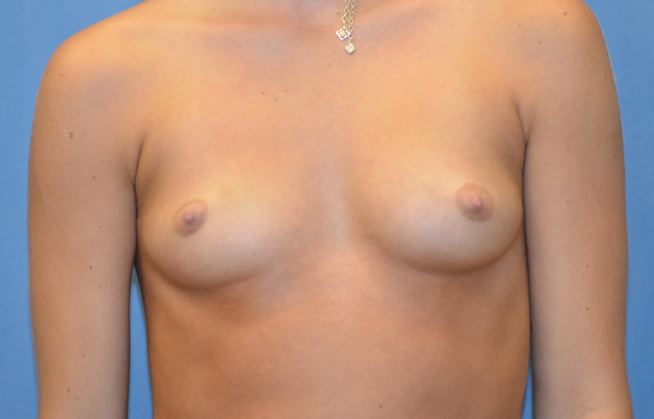 breastaug-before-front_6859.JPG