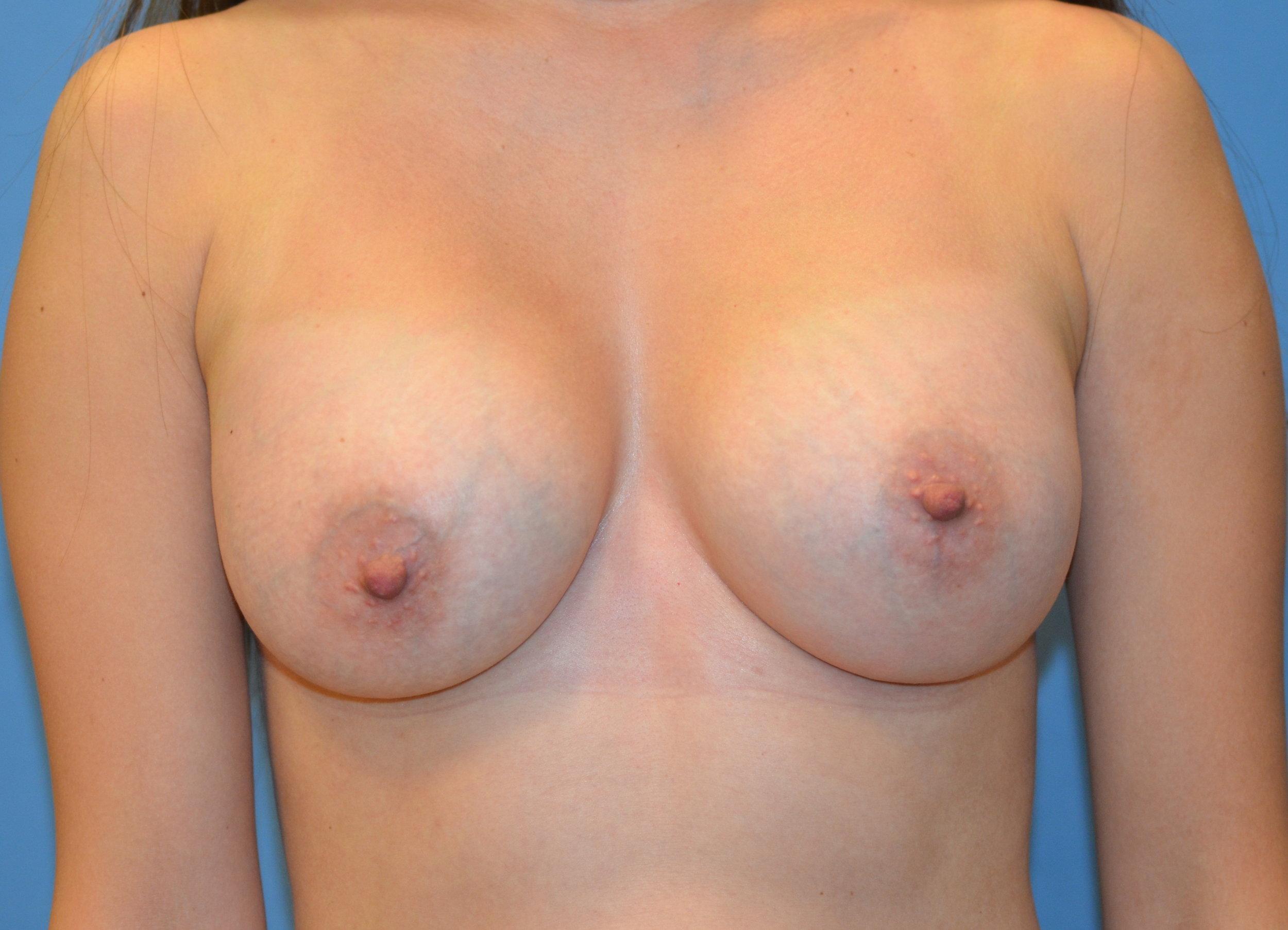 breastaug-after_8736.JPG