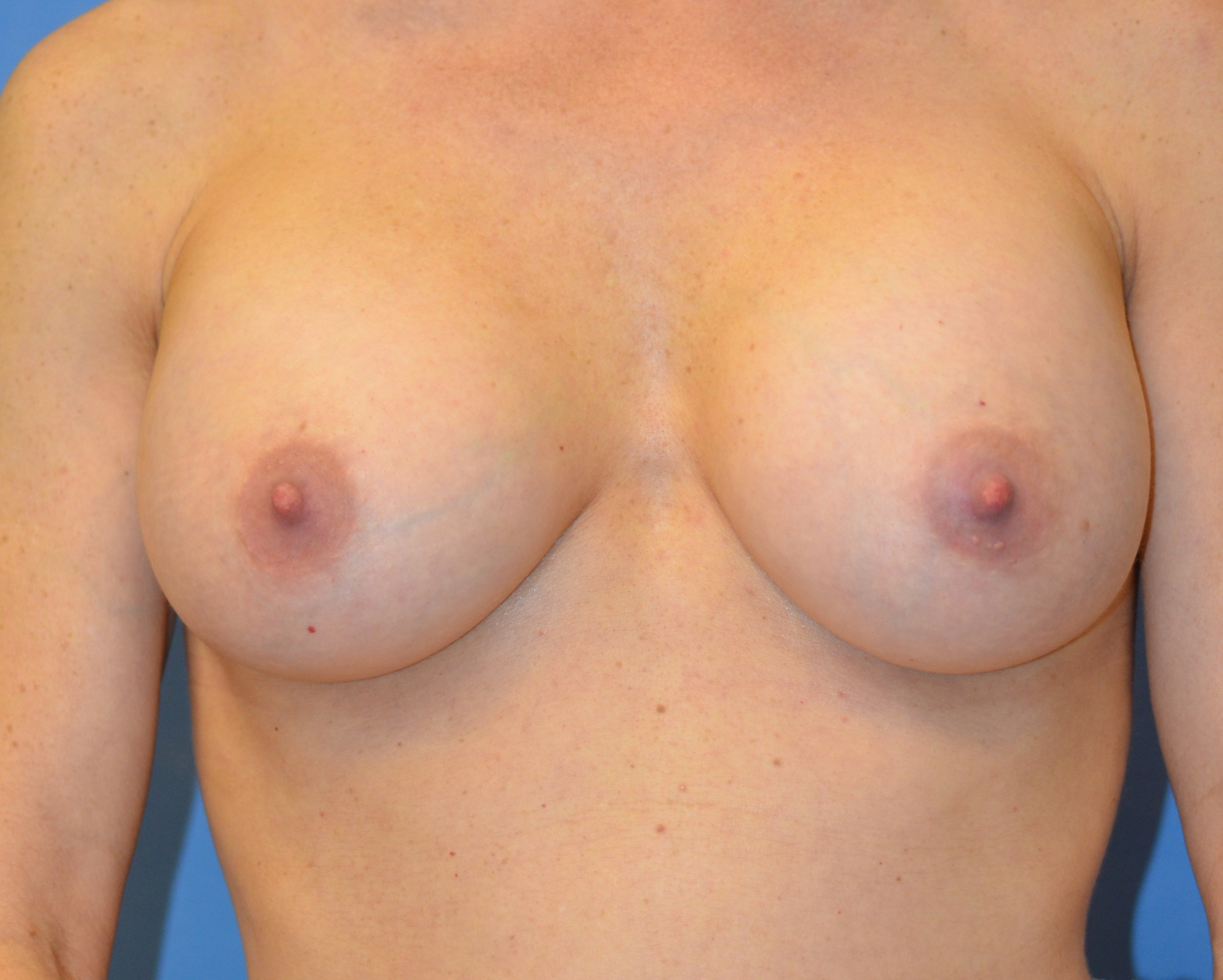 9594-breastaug-after.JPG
