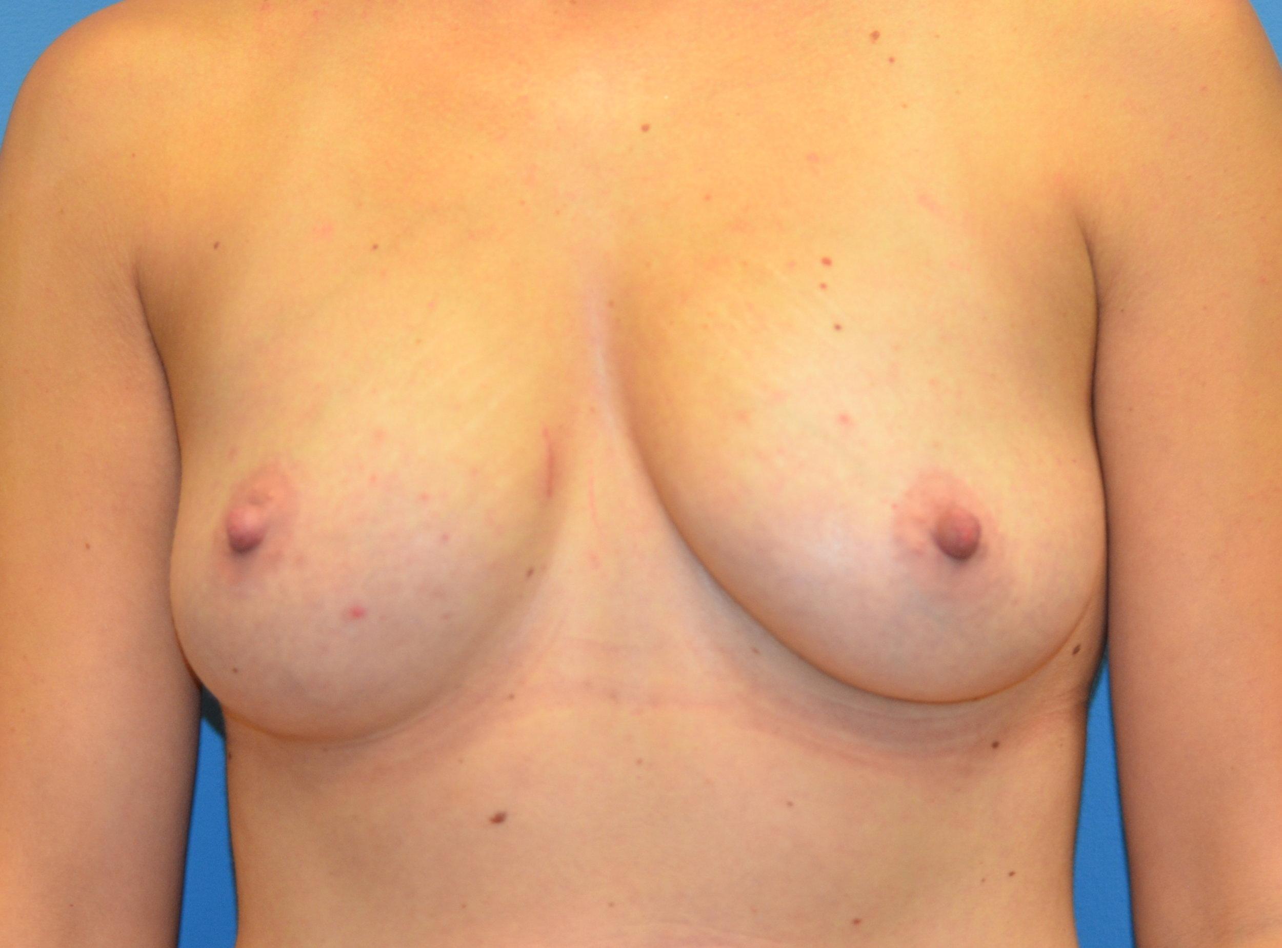 9594-breastaug-before.JPG