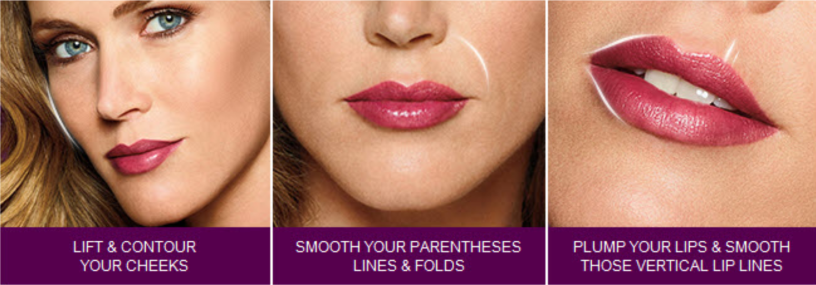 juvederm-areas.png