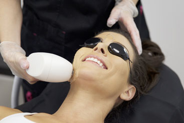Photorejuvenation Treatment -