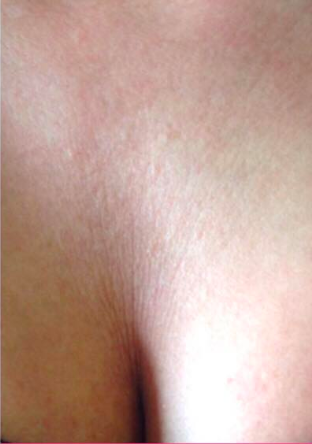 sculptra chest after.png