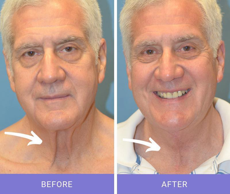 8 months post anterior cervicoplasty