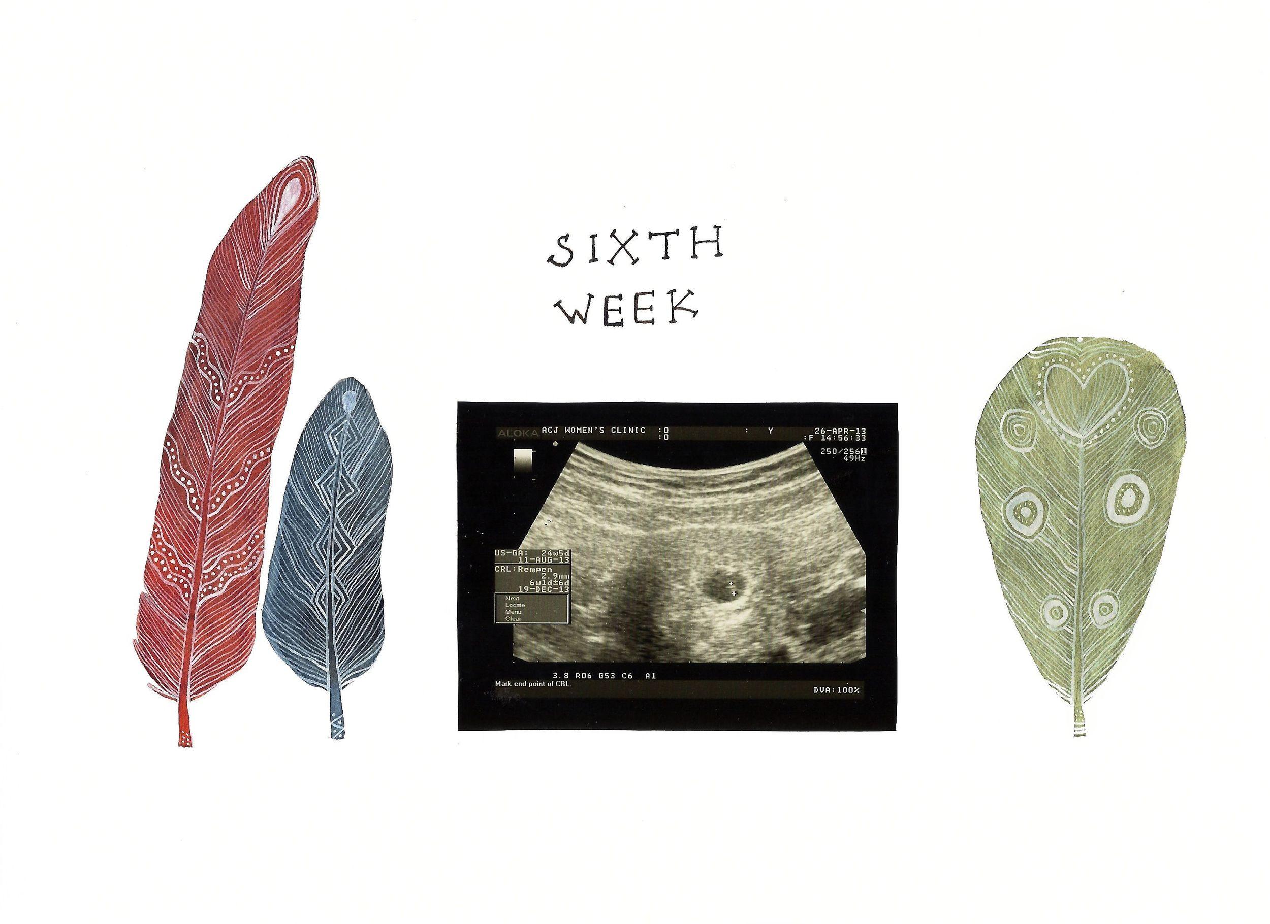 sixth week ultrasound scan