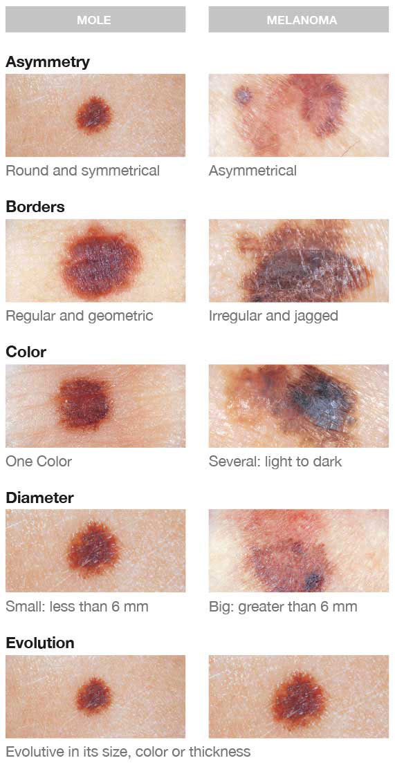 The ABCDE of Melanoma. Image credit Loreal Paris.