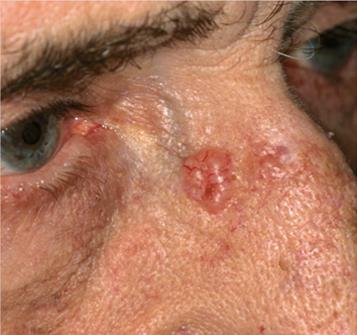 Basal Cell Carcinoma. Image credit medicinenet.com