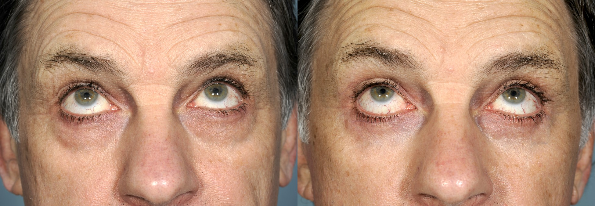 Before & 3 months after upper and lower blepharoplasty (eye lift)