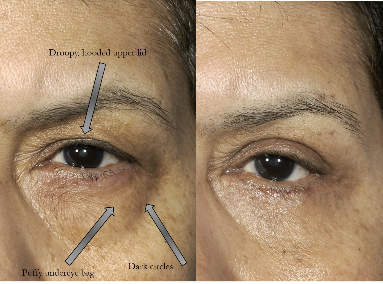 Before & 2 months after upper and lower blepharoplasty (eye lift)