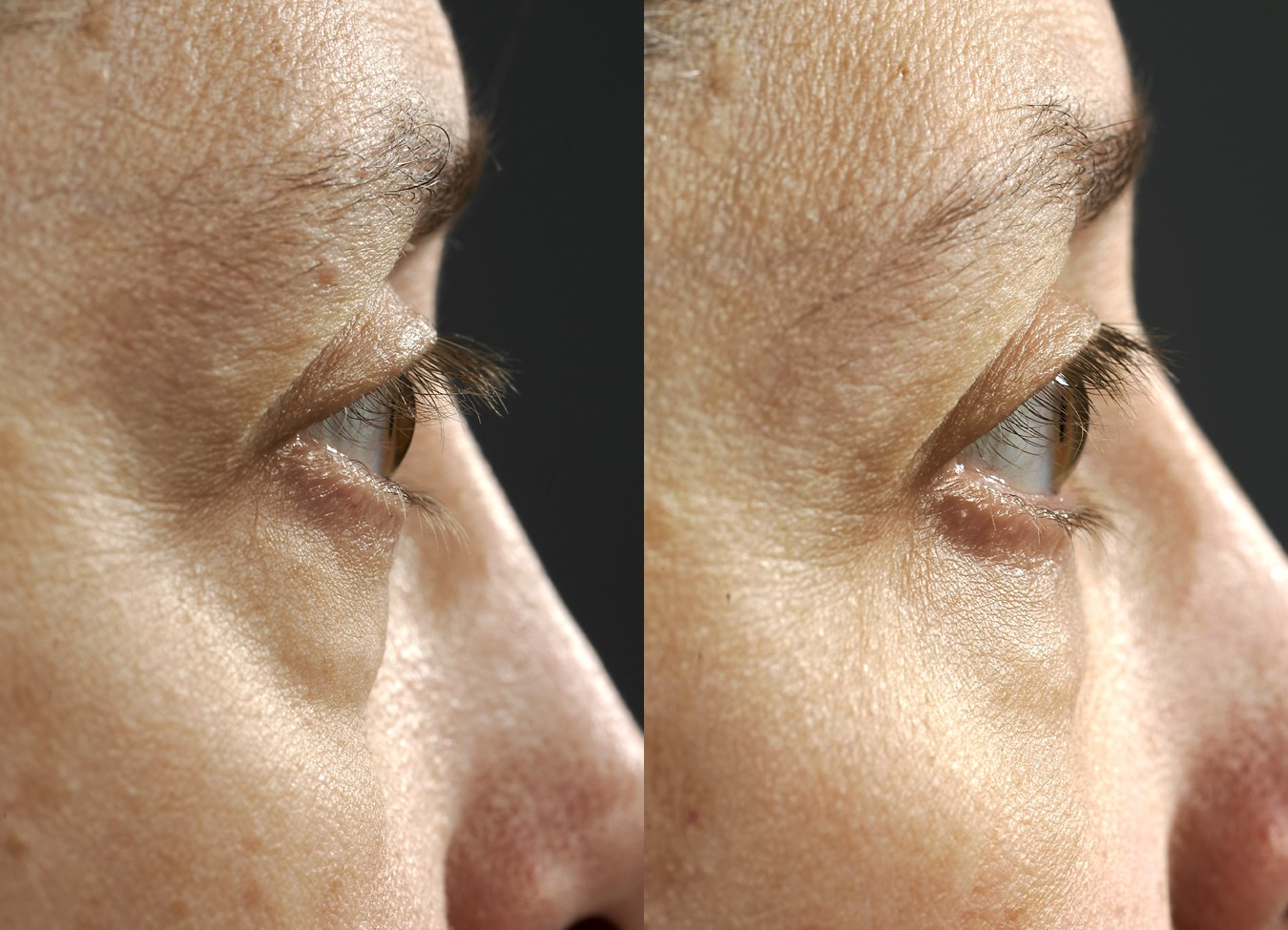 Before & 5 months after transconjunctival lower blepharoplasty (lower eye lift with hidden incisions)