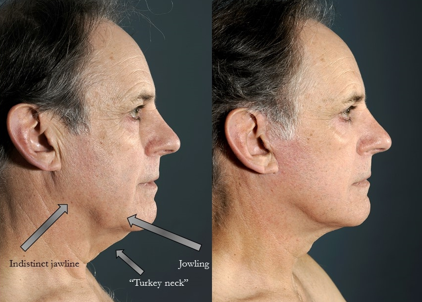 Actual patient of Dr. Devgan. Before & 4 months after necklift and upper & lower eyelift
