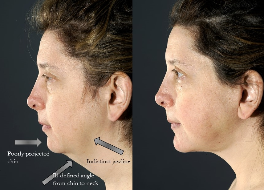 Actual patient of Dr. Devgan. Before and 4 months after facelift and chin augmentation