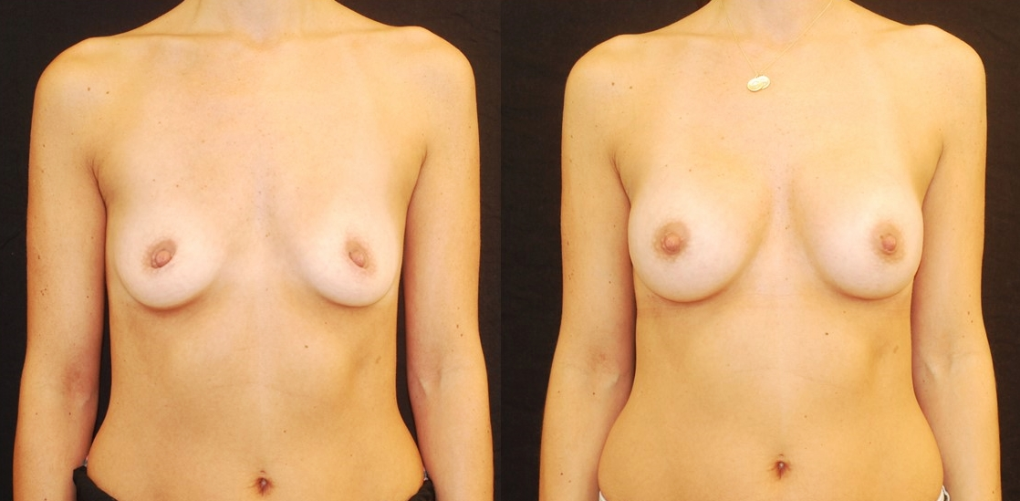 breast implants NYC breast augmentation NYC